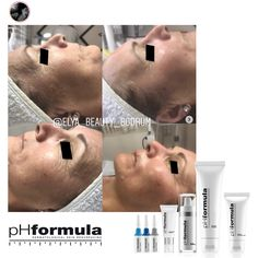 Excellent skin resurfacing results achieved by our pHformula skin specialists in Turkey. Thank you for sharing @elya__beauty__bodrum #pHformula #skinresurfacing #artofskinresurfacing #pHformulatr #antiaging #results #thankyou
