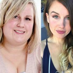 prs se akesson weight loss