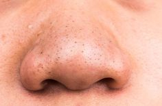 Fighting tons of blackheads? Here's what Dr. Pimple Popper recommends using to treat blackheads. Blackhead Remedies, Acne Remedies, Blackhead Remover, Acne Treatment, Natural Remedies, Skin Treatments, How To Treat Blackheads, Get Rid Of Blackheads, Tips