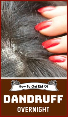 How To Get Rid Of Dandruff Overnight Loading. How To Get Rid Of Dandruff Overnight Home Remedies For Dandruff, Anti Dandruff Shampoo, Hair Remedies, Hair Mask For Dandruff, Overnight Hair Mask, Overnight Hairstyles, Clear Hair, Hair Masks, Health