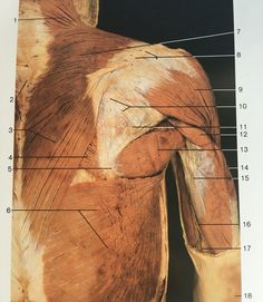 Superficial layer of dorsal aspect of upper limb muscles (shoulder & arm): 1,7,3: trapezius, 4:rhomboid major, 6:latissimus dorsi, 9:posterior deltoid, 10:infraspinatus, 11:terrs minor, 12,14,15: triceps brachii, 13:teres major Gross Anatomy, Latissimus Dorsi, Muscular System, Skeletal Muscle, Shoulder Muscles, Muscle Body, Medical Art, Free Education, Anatomy Reference