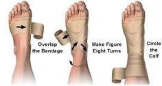 How to Correctly Wrap an Ankle with an Elastic Bandage: Advice from Allina Health on identifying and managing ankle injury. Health Tips, Health And Wellness, Health Fitness, Athletic Training, Medical Assistant, Sports Medicine, Medical Information, Anatomy And Physiology, Nurse Life