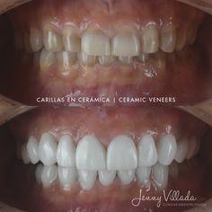 Diseño de sonrisa en cerámica Dental, Vegetables, Food, Faces, Essen, Vegetable Recipes, Meals, Teeth, Yemek