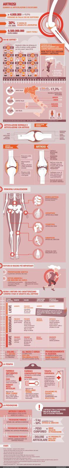 Artrosi: quando le articolazioni ci bloccano - Alice Borghi per Esseredonnaonline