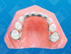 Esthetics and strength are the key advantages to this popular design. The Groper Fixed Anterior Bridge is made extra strong by attaching each tooth separately to a specially designed, stainless steel pad (an SML exclusive). Dental Bridge, Diy Box, Orthodontics, Pediatrics, Braces, Early Childhood, Tooth, Strength, Appliances