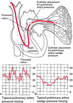 hemodynamic monitoring - definition of hemodynamic monitoring in the Medical dictionary - by the Free Online Medical Dictionary, Thesaurus a...