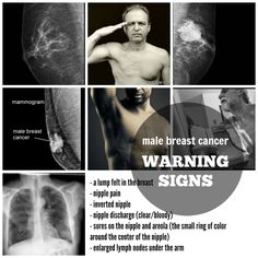 male breast cancer symptoms and warning signs Lymph Nodes, One Drop, Small Rings, Breast Cancer, Infographic, October 2014, Warning Signs, Lisa, Wordpress