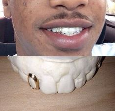 gold teeth fangs with front bar top or bottom by GRILLZGODZ Gold Tooth Cap, Tooth Gem, Open Face Grillz, Girl Grillz, Dental Jewelry, Tooth Crown, Piercings, Diamond Teeth, Grills Teeth
