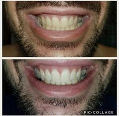 Whitening Fluoride Toothpaste, I Site, Anti Aging Skin Care, Nu Skin, Hair Beauty, Blog, Health, Pictures, Beauty Products