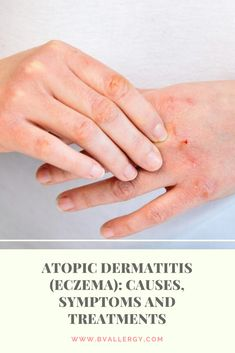 Atopic Dermatitis (Eczema): Causes Symptoms and Treatments Types Of Rashes, Types Of Acne, Atopic Dermatitis Treatment, Itchy Rash, Eczema Psoriasis, Signs And Symptoms, Asthma, Allergies, The Cure