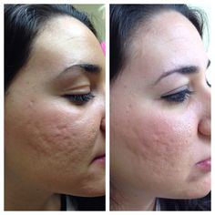 Before and After Micropen™ treatment. Crabapple Internal and Integrated Medicine 45 W Crossville Road, Suite 501 Roswell, GA 30075 770.594.1233