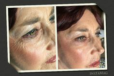 2 minute Instantly Ageless results