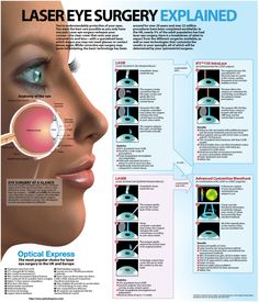 Laser eye surgery, like LASIK, is used to correct vision problems such as short sight, long sight and astigmatism. It has been widely available since the but there are still many myths surrounding the Lasik Eye Surgery, Eye Facts, Wierd Facts, Awesome Facts, Interesting Facts, Laser Surgery, Operation, Eyes Problems, Eyesight Problems