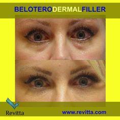 BELOTERO Dermal Filler. Under eyes treatment - great results that last   #revitta   #manhattan #ny   212.535.1201   www.revitta.com   #belotero #dermalfiller #filler #undereyehollow #teartrough #eyewrinkles #wrinkles #newyork #nyc #newyorkcity #cosmetic #beauty #skin #face #rejuvenation #dermafiller #faceinjections #beautyshots #juvederm #restylane #style #fashion #love #newyorker Skin Care Regimen, Skin Care Tips, Face Injections, Bumps Under Eyes, Laser Skin Tightening, Manhattan, Under Eye Makeup, Facial Aesthetics, Brooklyn