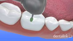 Incrustación - Dentalink Software, Video 3D