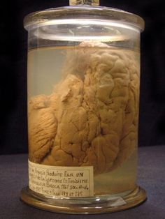 The study of phrenology (the brain and mind) is said to have begun with this brain. It belonged to a man called Leborgne who suffered from inability to diction because of a brain lesion.  He was treated by Paul Broca (1824-1880). The brain can be found at the Dupuytren museum in Paris. The next human brain is also on public display.