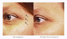 Pelleve crows feet treatment before and after Radio Frequency skin tightening Skin Treatments, Natural Face Lift, Natural Skin Care, Natural Beauty, Radio Frequency Skin Tightening, Home Remedies For Wrinkles, Wrinkle Remedies, Natural Remedies, Home Remedies