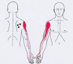Acupuncture Pain Relief Trigger Points and Shoulder Pain - Muscle Pain, Acupuncture, Repetitive Strain Injury, Referred Pain, Dry Needling, Muscle Knots, Physical Therapy, Massage Therapy, Massage