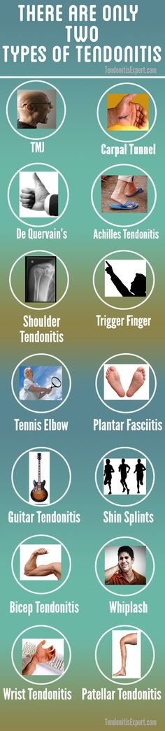 There are only two types of tendonitis. The only difference between them is the location. Come find out how to solve your tendonitis problems at. http://www.tendonitisexpert.com/tendonitis-types.html