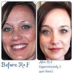 Here are REAL results before Rodan + Fields and after. Notice before there are more wrinkles and sun damage. The after picture has less wrinkles and even skin tone. Thank you R+F! Who's ready to change their skin? Contact me today! Https://patsymiller.myrandf.com. Patsypmiller@gmail.com