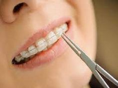 At Ivanov Orthodontic Experts located on Biscayne Blvd, we offers all types of braces for adults and kids such as metal, ceramic, clear and more affordable braces.Know More Today!