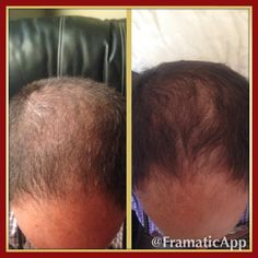 The Classic Confidence system before and after only 3 weeks!!