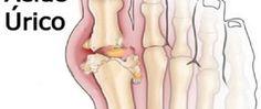 Elimine o excesso de ácido úrico no seu corpo com o suco de salsão, pepino e gengibre - http://comosefaz.eu/elimine-o-excesso-de-acido-urico-no-seu-corpo-com-o-suco-de-salsao-pepino-e-gengibre/