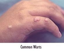 Home Remedies For Tiny Warts