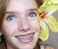 What are Braces? Dental braces simply put are a device that is fitted within a patients mouth to their teeth in order . Braces Girls, Cute Braces, Dental Braces, Teeth Braces, Charcoal Teeth Whitening, Natural Teeth Whitening, Piercing, Braces Colors, Blue Nails