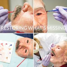 Through a combination of art, science and digital technology, the Center for Maxillofacial Prosthodontics at Texas A&M University Baylor College of Dentistry is able to restore malformed and missing parts of the human face, including eyes, ears, noses and even the entire face.