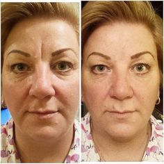 Forehead, Frown Lines and Under Eye Bags completely eliminated with Instantly Ageless!