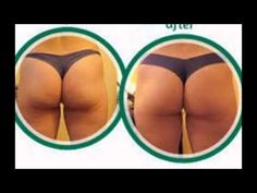 what causes cellulite on front of thighs   getting rid of cellulite on b...