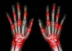 L'arthrose, aussi appelée ostéoarthrite, est une maladie causée par ladégradation des cartilages et des articulations,entraînant des douleurs articulaires. Elletouche particulièrement les plus de 50 ans mais elle peut survenir plus tôt, notamment au niveau des