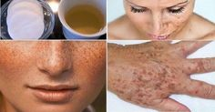This homemade lotion is made out of lemon(or apple cider vinegar) and parsley leaves. It whitens the skin and lightens freckles or dark spots of the face. After you apply this to the face,. Whitening Cream For Face, Skin Whitening, Dark Spots On Face, Acne Remedies, Tips Belleza, Vitamin E, Beauty Secrets, Healthy Skin, Healthy Food