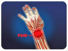 Preventing Wrist Pain and Carpal Tunnel Issues