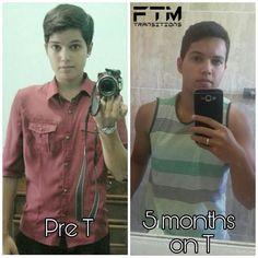 "572 Likes, 7 Comments - FTM Transitions (@ftmtransitions) on Instagram: ""Showcasing @_a.romeiro who is pre-T on the left and 5 months on #Testosterone on the right .…"""