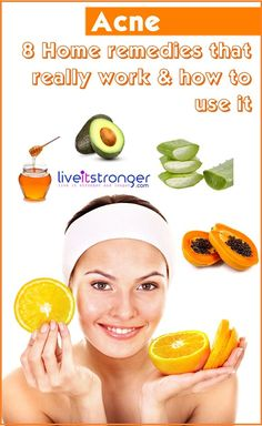 Home remedies for #acne . #papaya, #avocado , #honey , Orange are there in the list. Learn how to use it to treat your #pimples and Acne #AvocadoMask