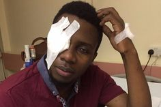 A Zimbabwe student is going Blind after he was beaten up in Cyprus - http://zimbabwe-consolidated-news.com/2017/07/08/a-zimbabwe-student-is-going-blind-after-he-was-beaten-up-in-cyprus/
