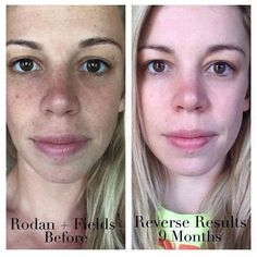 Want to Reverse Sun Damage without harsh treatment or expense of a spa? https://gomez.myrandf.com/Shop/Reverse
