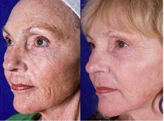 Anti-Age and AmpMd System