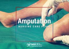 4 Amputation Nursing Care Plans - Nurseslabs