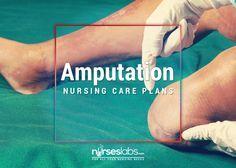 4 Amputation Nursing Care Plans - Nurseslabs