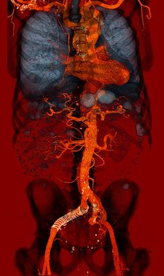 Aortic dissection (Stanford type B) ranging from the aortic arch into the iliac arteries. Medical Illustration, Illustration Art, Illustrations, Monalisa Wallpaper, Human Anatomy Art, Arte Obscura, Medical Art, Psychedelic Art, Art Plastique