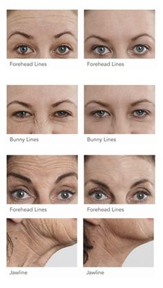 Best way to reduce wrinkles fast Chiaroscuro, Rid, Therapy, Hair Beauty, Yummy Food, Health, Style, Mascaras, Gossip