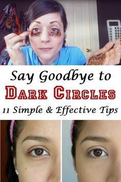 Dark circles may appear for various reasons, but one thing is certain: they are unsightly and make you look tired even when you're not. Here are 11 tips to get rid of them. My Beauty, Beauty Secrets, Beauty Care, Health And Beauty, Beauty Tips, Face Beauty, Beauty Stuff, Beauty Ideas, Tips And Tricks