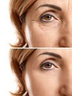 Anti-Wrinkle Silicone Eye Pad - Anti Aging Collagen Patch, Smooth Skin Wrinkles, Botox Filler Alternative, Self Care Creme Anti Rides, Creme Anti Age, Botox Alternative, Botox Fillers, Too Faced, Wrinkle Remover, Anti Wrinkle, Anti Aging, Skin Care
