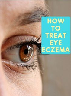Curious about how to treat eczema around the eyes? I've lived with eye eczema for years and I'll share my eye eczema tips and the stages of eczema! Eye Eczema, Eczema On Eyelids, Dry Skin Around Eyes, Eczema Around Eyes, Dry Skin Remedies, Eczema Remedies, Organic Skin Care, Natural Skin Care, Allergies