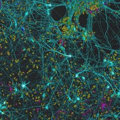 """NeuroBead - confocal microscopy image of neurons as inspiration for sciart piece """"Lost in Manhattan"""" Biology Art, Teaching Biology, Confocal Microscopy, Scanning Electron Micrograph, Electron Microscope, Organic Art, Neurons, Stem Activities, Easy Drawings"""
