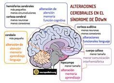 cerebro sindrome Down via @MasTwitts neuronas en crecimiento