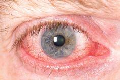 UVEÍTIS - ¿Se te enrojecen los ojos constantemente? Los motivos pueden ser muy variados, pero la uveítis es uno de ellos y se trata de una enfermedad grave que conviene diagnosticar lo antes posible.